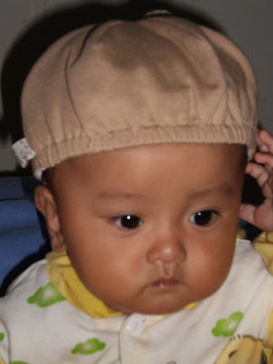 farzan esfandiar baby eye problem