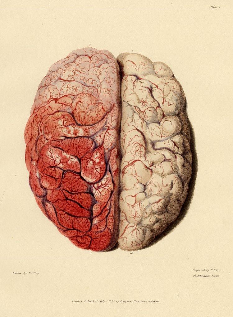 Morbid Anatomy 33 Plates Of Morbid Anatomy Elucidating Dr Brights