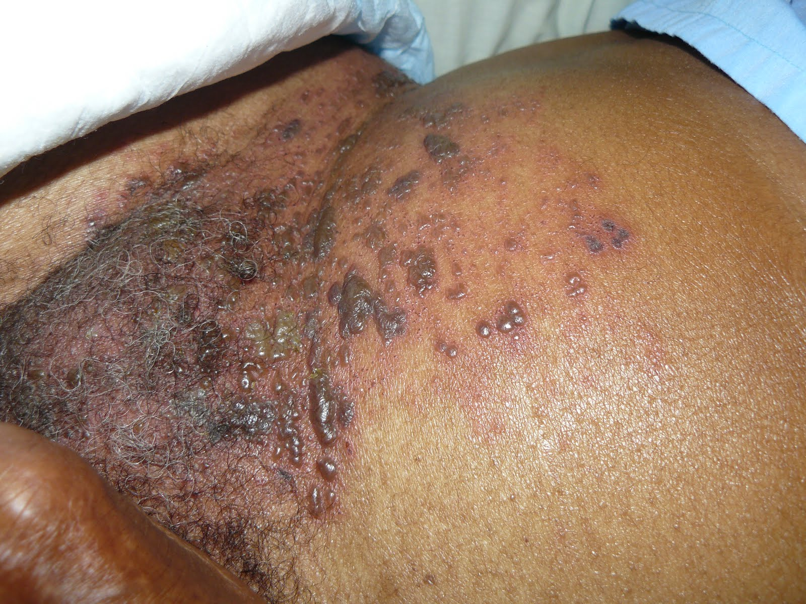 shingles 300x225 Top 10 Most Painful Diseases in the World