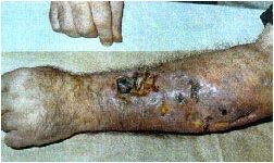 Meth Bugs Under Skin http://thisismeth.blogspot.com/