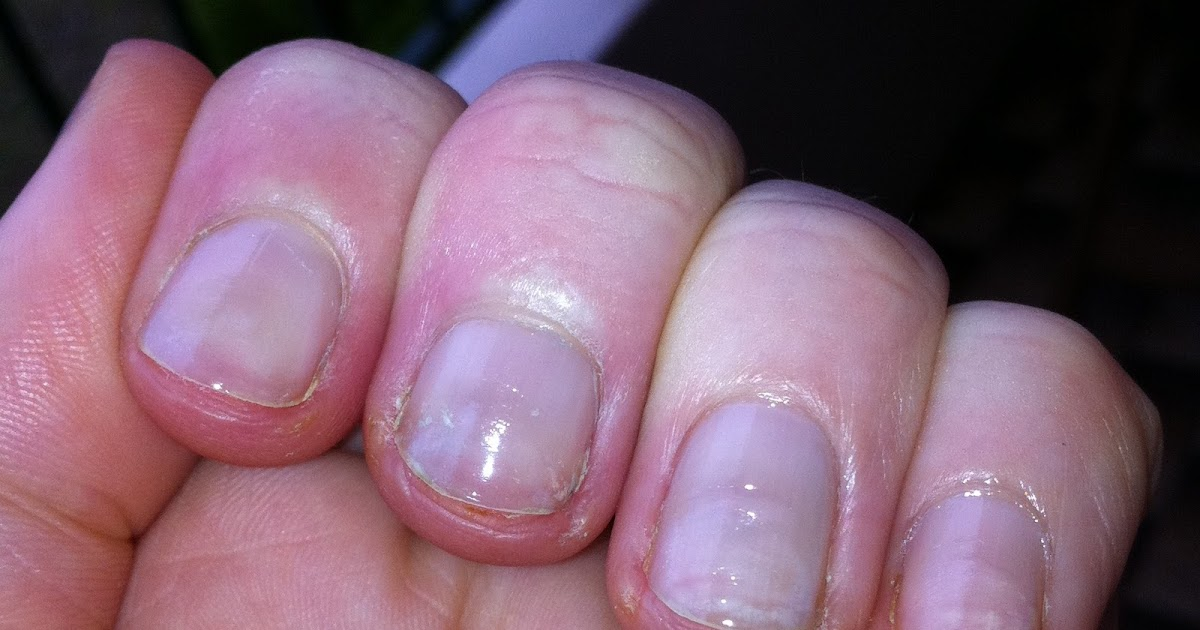 miss chew: The truth about healing your nails after having acrylics...