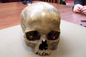 Allegedly the Skull of Count Von Donop