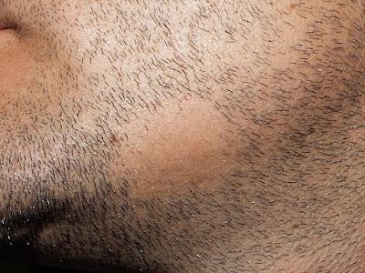 Alopecia areata - entra si se te cae el pelo en circulos