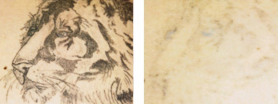 Home Tattoo Removal - A Few Things You Should Know About Tattoo Fading ...