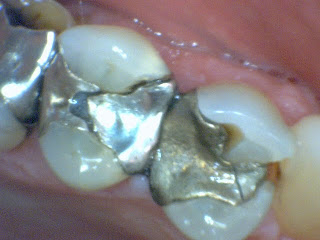 Case Studies In Dentistry 3 Missing Ml Cusp And Large