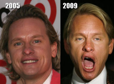 Carson Kressley Before and After Cosmetic Surgery