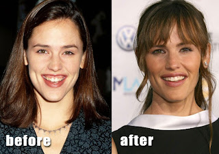 Jennifer Garner Before and After The Plastic Surgery