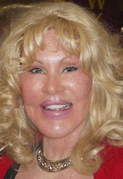 The Real Catwoman or Freaky Alien Jocelyn Wildenstein picture 2