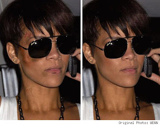 Rihanna Bruised Face Just Photoshopped