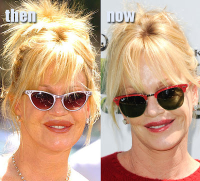 Melanie Griffith Deflated Lips