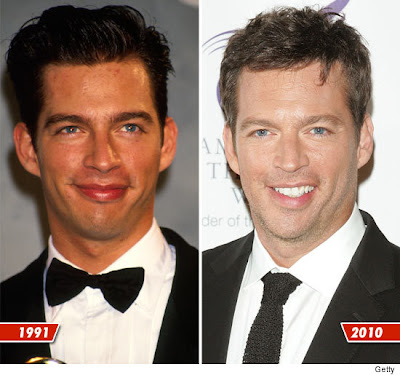 Harry Connick, Jr. Before and After Photo