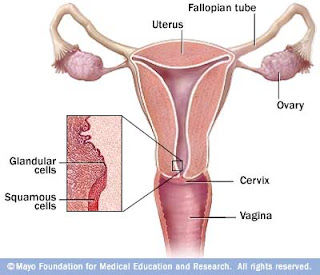 Cervical cancer and symptoms