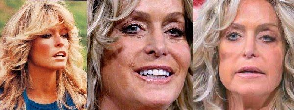 Fotos de erros da cirurgia plastica