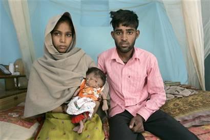 Nace niña con dos caras en la india