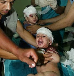 """صورة طفلين من غزة يحولها الإعلام الإسباني لصورة طفلين صحراويين """"أصيبا"""" برصاص مغربي"""