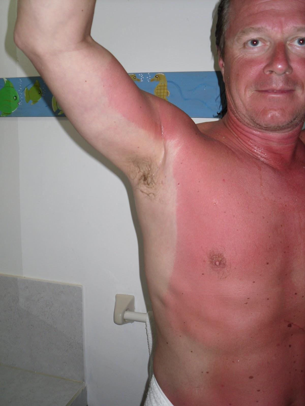 har bränt mig i solen