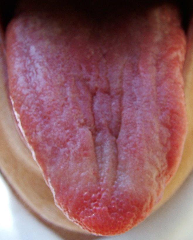 punta del pene roja