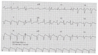 ECG Case study - 003 http://indonersiacenter.blogspot.com/ 68 year old female
