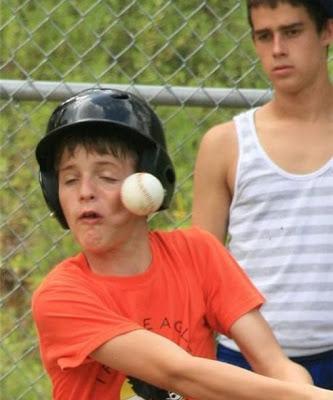 Pelotazo de beisbol en la cara
