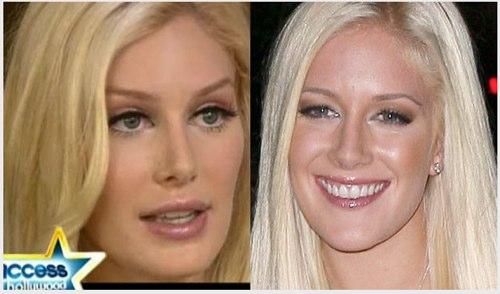 heidi montag plastic surgery face. kasvojen kauneusleikkaukset