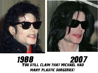5  Another major faux pas by Michael Jackson Nose Collapse