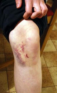 Dotterns knä med rejält blåmärke.