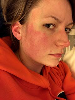 Wish Acid reflux facial flushing hot