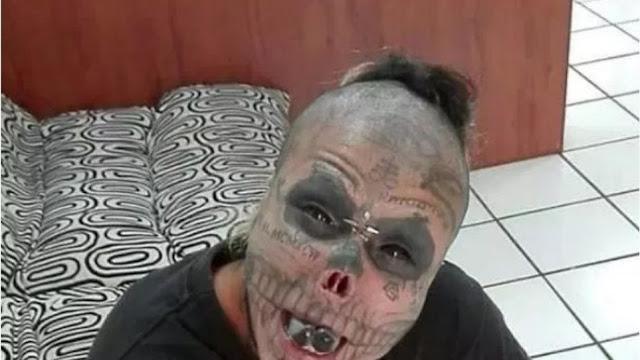 Σχιζοφρενής που κυκλοφορεί ελεύθερος έκοψε τη μύτη, τα αυτιά του και τη γλώσσα του