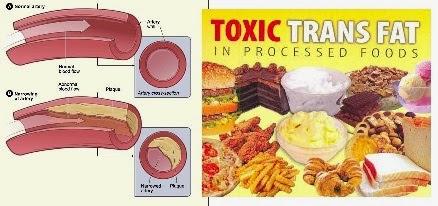 Lemak Trans (Trans Fat) Penyebab Diabetes Melitus (DM)
