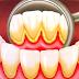 O mal do tártaro: gengivite pode levar à perda de dentes