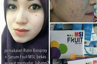 Testi MSI Fruit Serum Stemcell