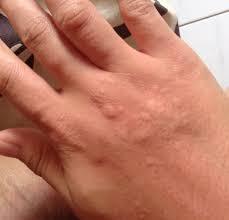 Obat alami tradisional untuk menyembuhkan gatal di kulit