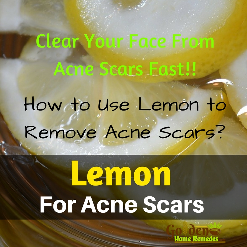How To Lighten Acne Scars Home Remedies