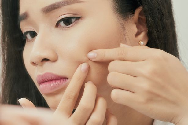 How to get rid of acne scars and routine