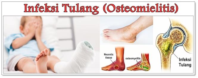 Cara Mengobati Infeksi Tulang (Osteomielitis) Herbal