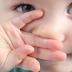 Obat Trandisional : Untuk Penyakit Gatal-Gatal Pada Anak.