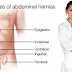 Topmost 10 Types of Hernia and Its Best Treatment