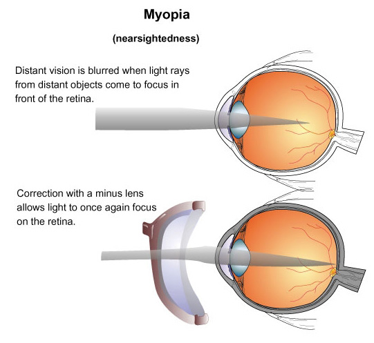 Vision Disorders-Types And Symptoms