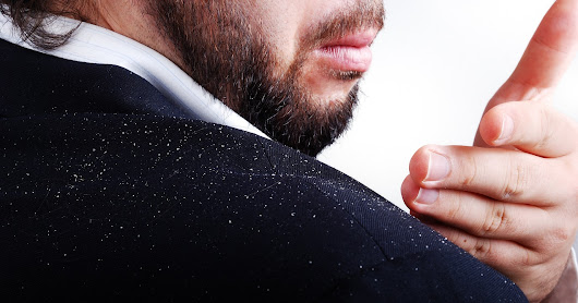 Dandruff: What's It All About?
