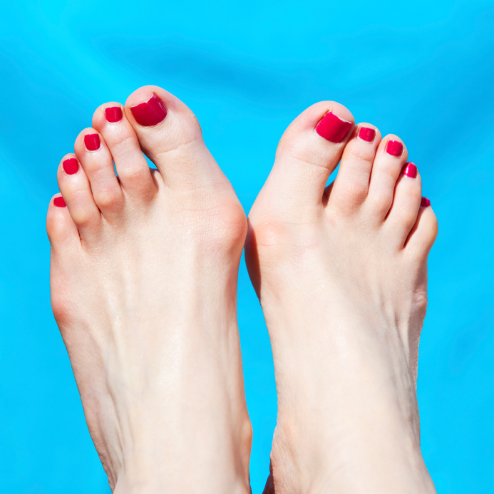 Bunion is a bony bump caused at the base of the big toe that causes the big toe to slant towards the other toes.