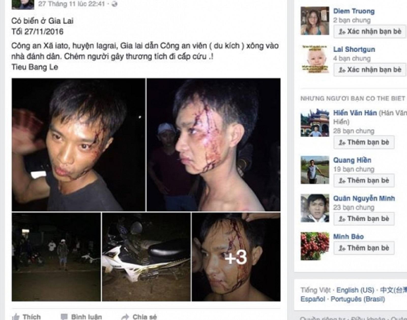 Gia Lai: Đang điều tra vụ công an xã bị tố chém trai làng