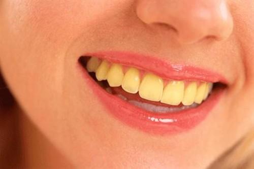 11 Cara Atasi Gigi Kuning Agar Putih Kembali Bang Isman