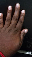 controlando o vício de roer as unhas