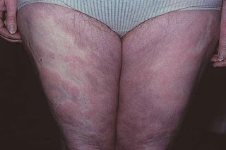 Lamictal rashes on the patient's lower extremities pictures