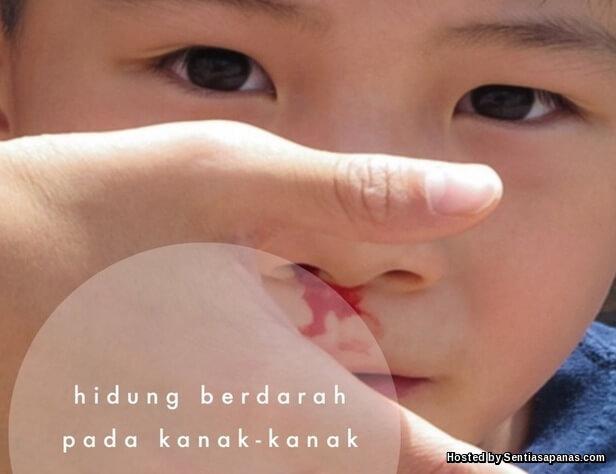 Hidung anak Berdarah