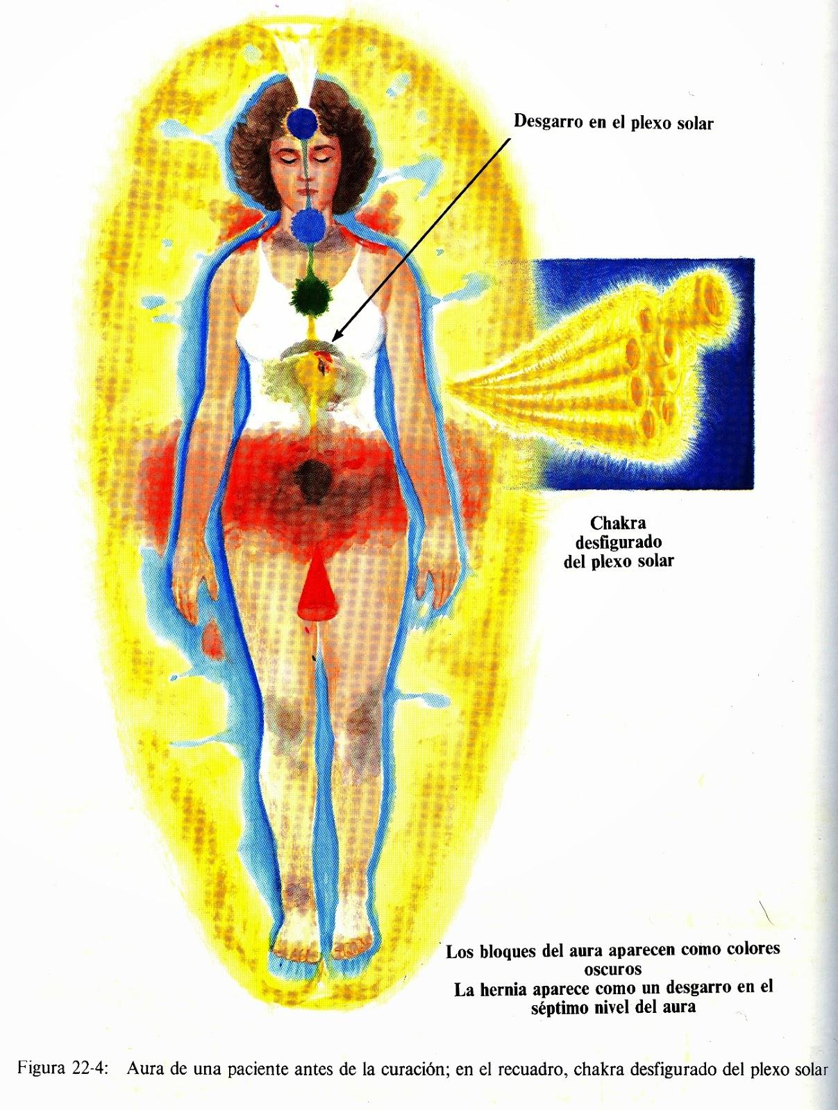 Fig de Barbara Brennan indicando chakra desfigurado del plexo solar