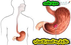 ما هي أسباب الإصابة بقرحة المعدة؟