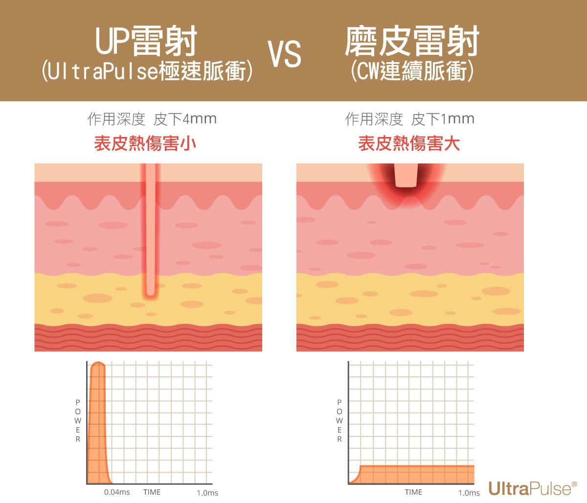 UP雷射CW雷射傳統二氧化碳雷射表皮傷害汽化雷射UltraPulse飛梭雷射