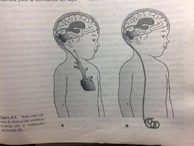 Complicaciones y Alteraciones Secundaria Espina Bífida (Mielodisplasia)