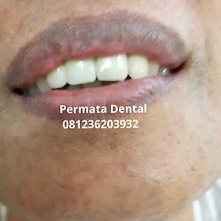 gambar foto gigi ompong yang telah dipasangi gigi tiruan cekat gigi permanen crown bridge metal porselen